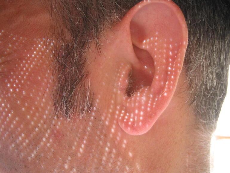 ear-dots.jpg